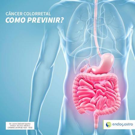 Câncer Colorretal, Como Previnir?