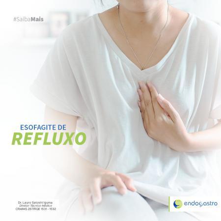 Esofagite de Refluxo