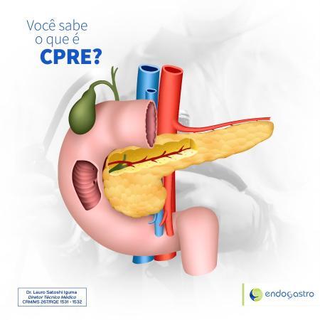 Você sabe o que é CPRE?